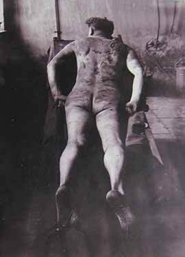 Photo of the body of Louis Schloss, who died at Dachau