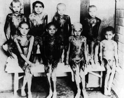 Gypsy children, suffering from a disease called