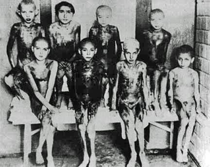 "Gypsy children who are suffering from a disease called ""Noma."""