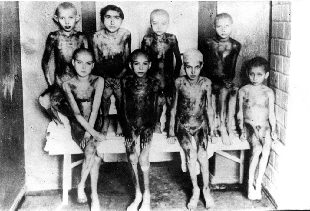 Gypsy children suffering from Noma